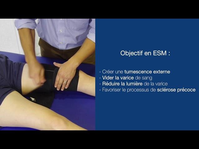 Nouvel outil dans l'arsenal thérapeutique de sclérose des veines  - Société Française de Phlébologie