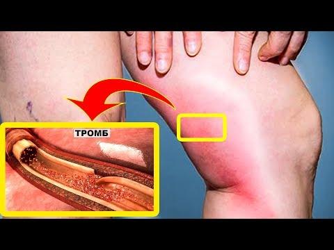 Опасные признаки тромбов, которые могут мгновенно вас ...  Не игнорируйте!
