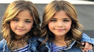 Родители думали, что малышки будут обычными близняшками. Но когда они выросли – ахнул весь интернет!