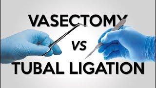 Vasectomy vs Tubal Ligation