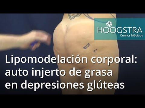 Lipomodelación corporal: auto injerto de grasa en depresiones glúteas (18103)