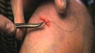 How to Suture a wound; real head gash