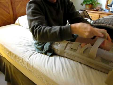 What is the rehab for a fractured patella?