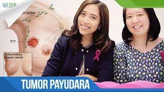 DOKTERKU - Tumor Payudara.