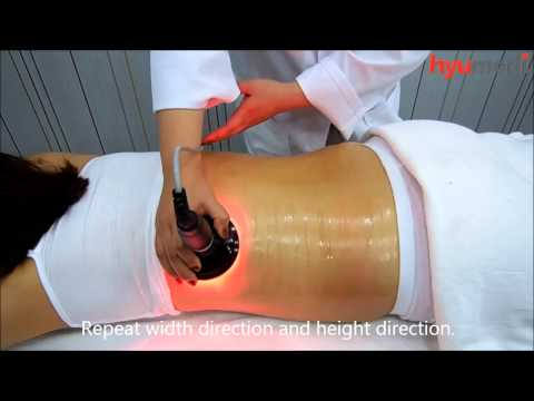 CaviR Radio Frequency + Cavitation for Skin tightening and Body slimming from hyumedi