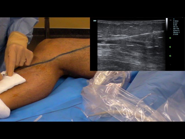 A painless Seldinger Technique for thermal ablation