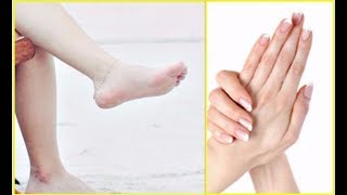 How to Get Whiter Hands & Legs in 2 Minutes | Smooth Silky Skin