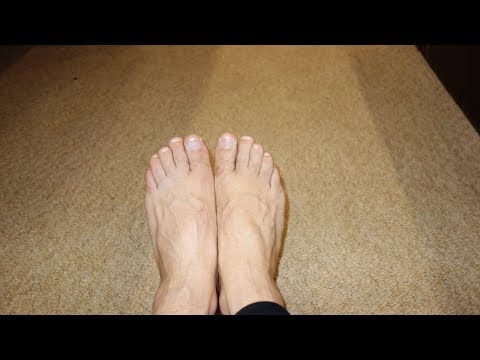 Вылечить грибок с больших ногтей ног