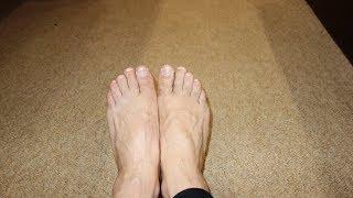 Вылечить грибок ногтей народными средствами - метод 5(Как лечить грибковое поражение ногтевых пластин, применяя народные методы и средства. Эффективное лечение..., 2016-02-02T10:21:48.000Z)
