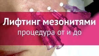 Подтяжка лица мезонитями: процедура от и до