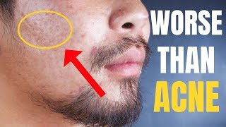 THIS is WORSE Than Acne!