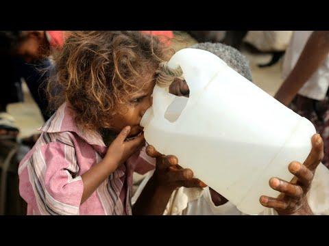 أوضاع انسانية مأساوية قاتمة في اليمن  - نشر قبل 31 دقيقة