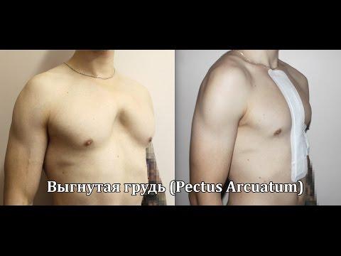 Синдром куррарино-сильвермана фото