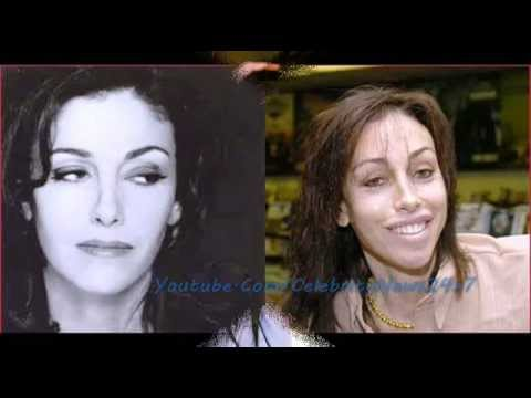 Heidi Fleiss Plastic Surgery Before and After Full HD