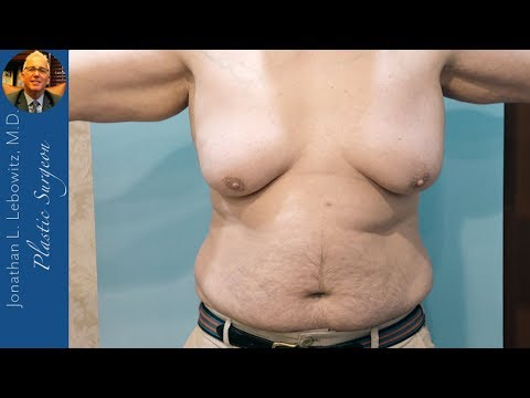 Male Breast Reduction With VaserLipo At The Long Island Gynecomastia Center, NY By Dr. Lebowitz