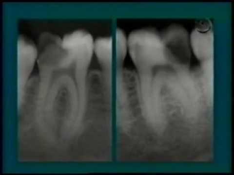 Lixar dente doi learn