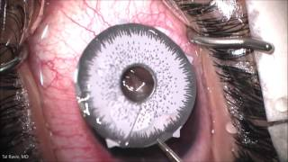 Brightocular Gone Wrong - Implants Removed #4 Due To Redness and Blurred Vision