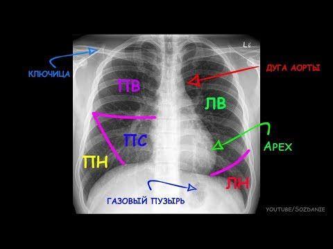 Рентгеноанатомия грудной клетки за 5 минут