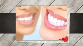 отбеливание зубов в витебске стоимость   - Безвредное Отбеливание Зубов