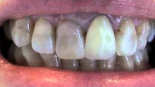 Dental Crown Options - Lakeway Center for Cosmetic & Family Dentistry Thumbnail