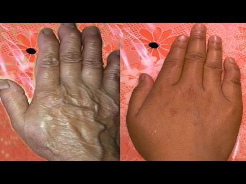 How to stop wrinkles on hand & fingers