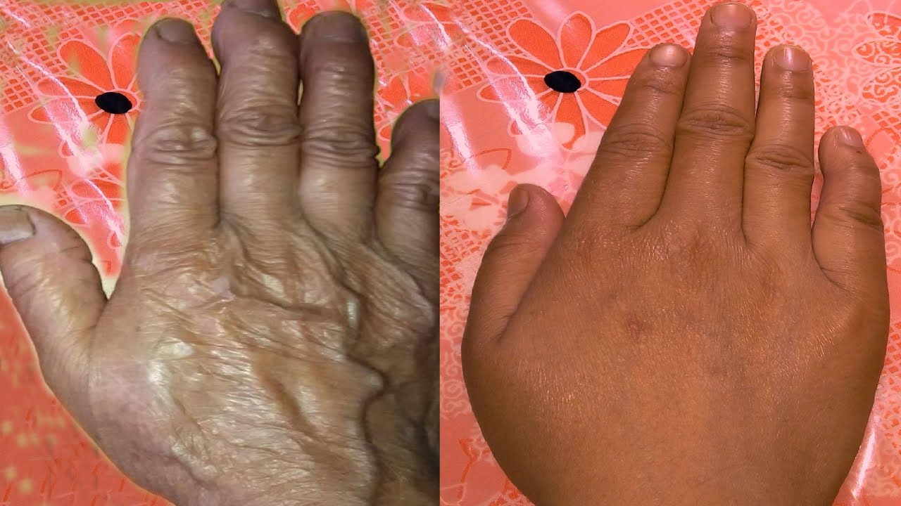How to stop wrinkles on hand fingers youtube ombrellifo Gallery