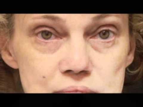 Natural Facial Rejuvenation - Lower Eye & Midface - Dr. Mark Glasgold