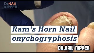 Ram's Horn Nail (onychogryphosis) trimming in podiatry office