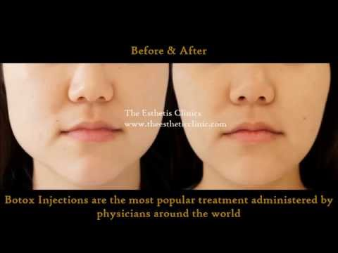 Botox Injection Treatment for Masseter Hypertrophy | How To Change Face Shape | Dr.  Debraj Shome