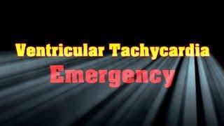 ECG: Ventricular Tachycardia (VT).