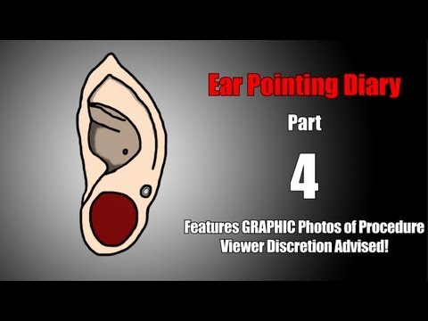 Ear Pointing Diary Part 4 - A Vast Improvement in Aesthetics (Graphic Photos of Procedure)