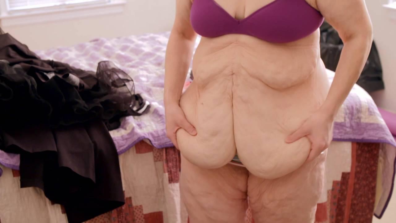 New skin, chirurgie de l'extrême: elle souffre toujours malgré tout ce poids perdu !