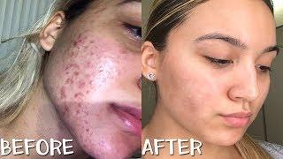 My Nighttime Skin Care Routine