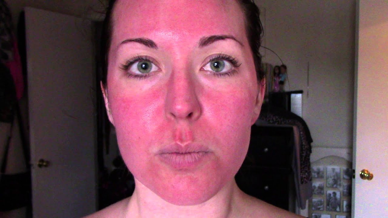 Part 5  4 Hours Post: Laura's Experience with Microneedling & PRP