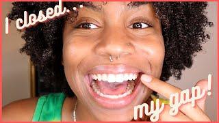 My Byte Experience: Pąrt 2 | I CLOSED MY GAP!!!