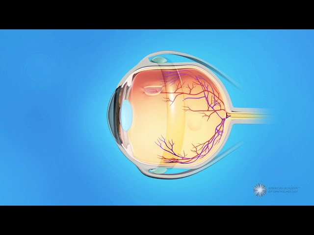 What is scleral buckle surgery?