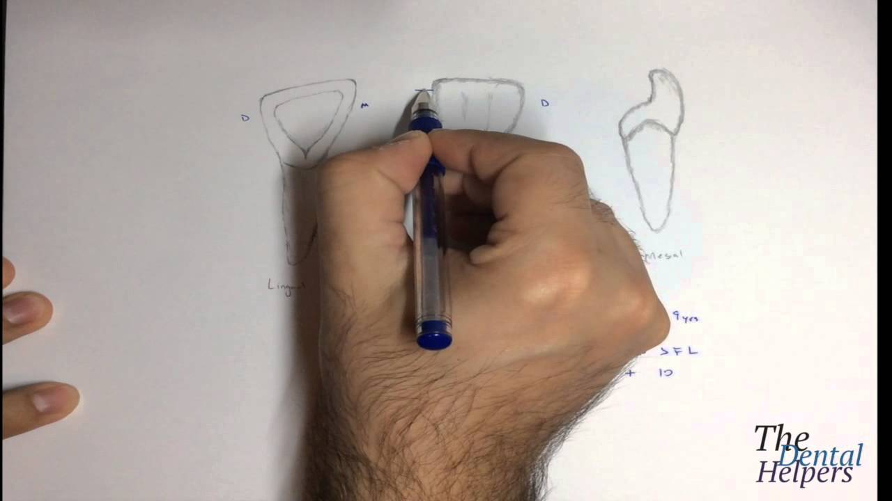 Dental Anatomy Maxillary Lateral Incisor Youtube