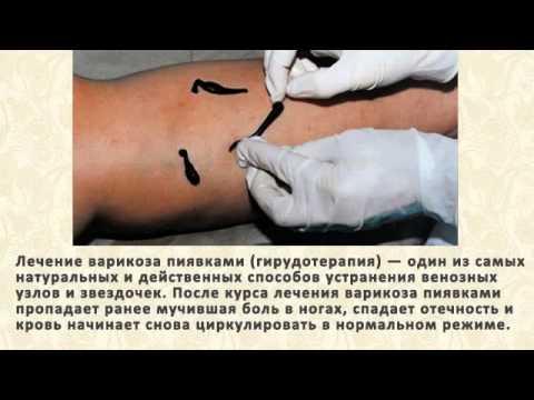 От чего бывает варикозное расширение вен на ногах