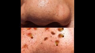 microdermabrasion for blackheads before and after