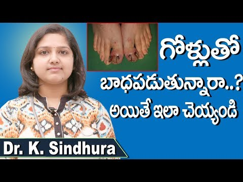 Natural Tips for Ingrown Toenail | Toenail Removal At Home Telugu | Leg Nail Infection | Doctors Tv