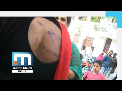 Transgenders Allegedly Attacked By Police In Kozhikode| Mathrubhumi News