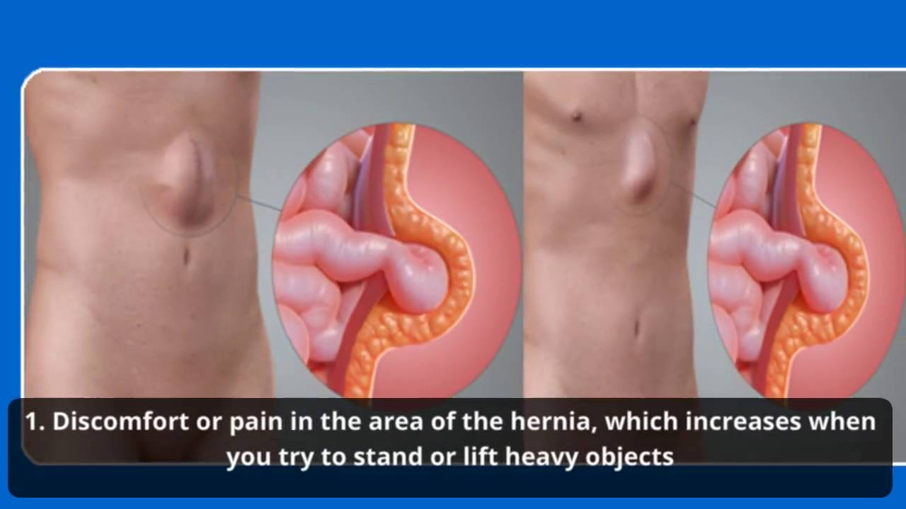 Ventral hernia: symptoms and treatment