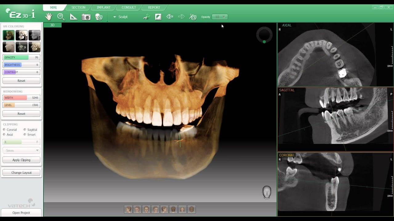 Ez3d I Software Included With The Vatech Pax I 3d Youtube