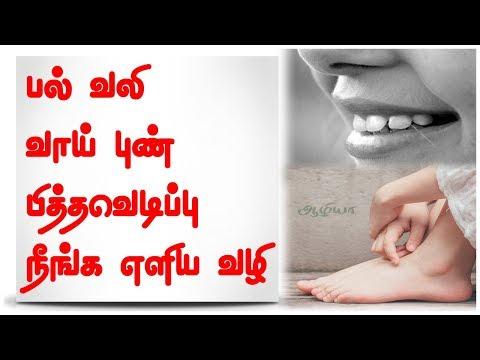 Tooth Pain Medicine   Sore Tooth Medicine   Cracked Heels Medicine   Health Tips Tamil