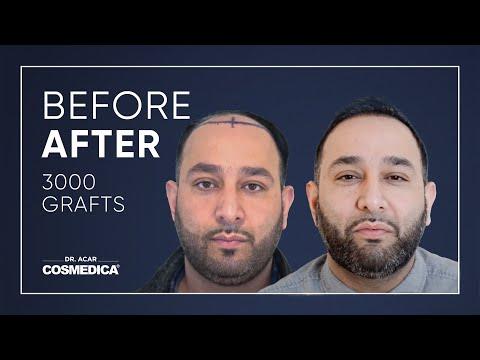 COSMEDICA DR.ACAR 3000 Grafts NW 6 FUE Hair Transplant,Turkey-Istanbul