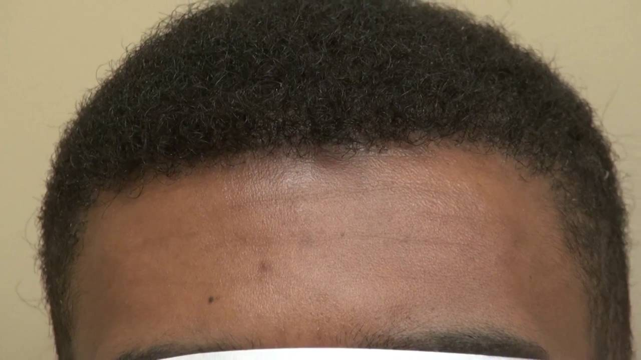 thinning hairline black male | find your perfect hair style