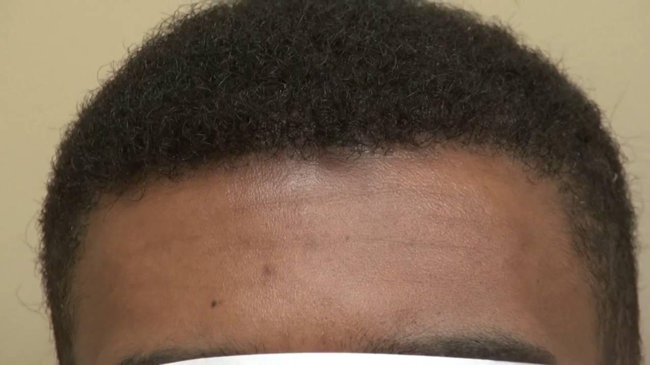 Black Male Balding Hair Loss Procedure Restoration Results