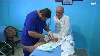 الحجامة بديلا عن الطب الحديث لدى طبيب أردني