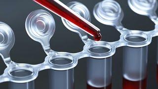 Уровень триглицеридов в крови