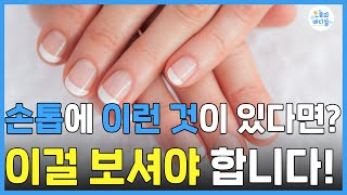 손톱에 이런증상이 있다…